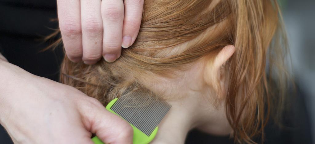 varför får man löss i håret